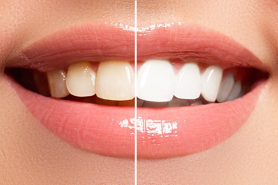 Blanchiment dentaire en fauteuil au cabinet Dental Geneva, Genève Cornavin