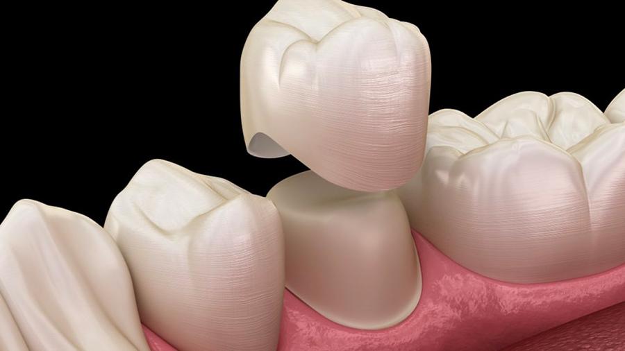 Pose de couronne dentaire au cabinet Dental Geneva, Genève Cornavin