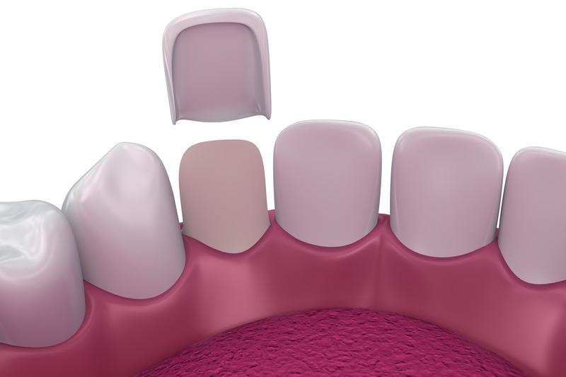 Pose de facettes dentaires au cabinet Dental Geneva, Genève Cornavin