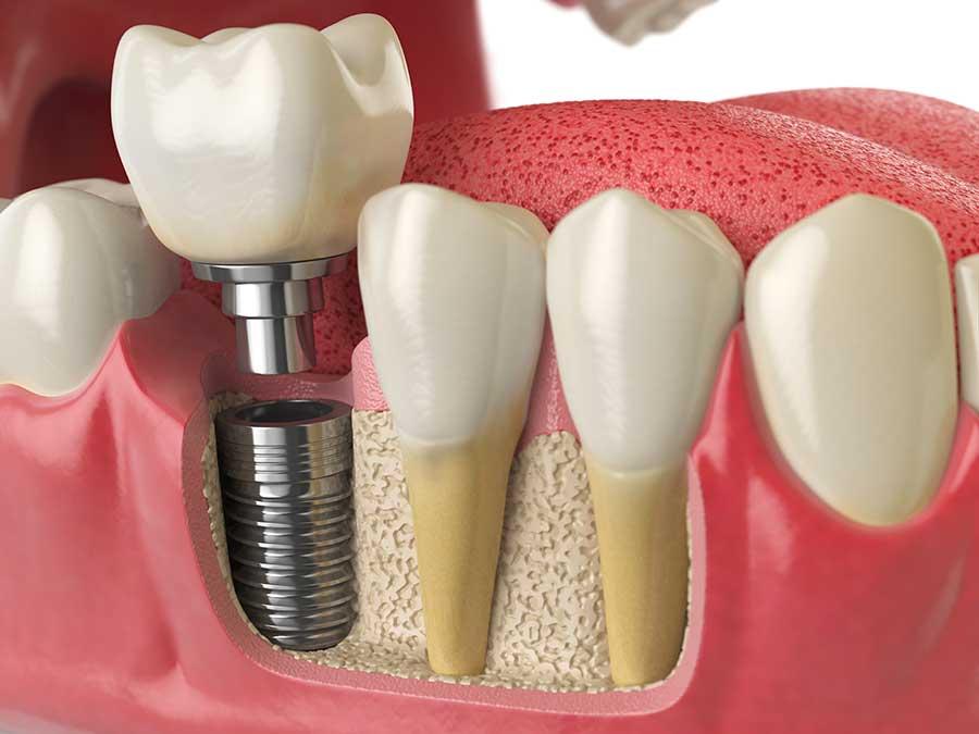 Implant dentaire dentiste cornavin