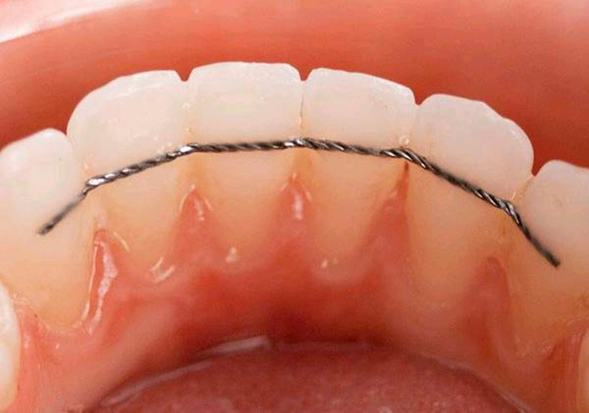 Fil de contention après traitement orthodontique au cabinet Dental geneva