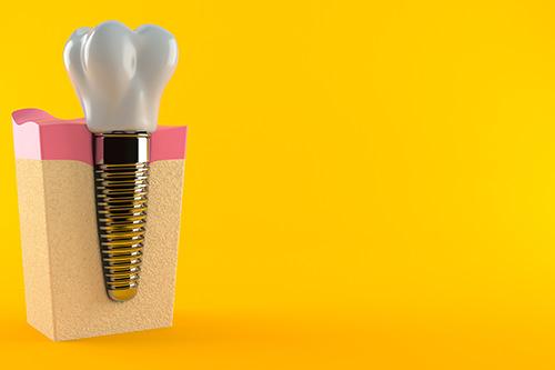 Implant dentaire et implantologie à Genève Cornavin, chez Dental Geneva