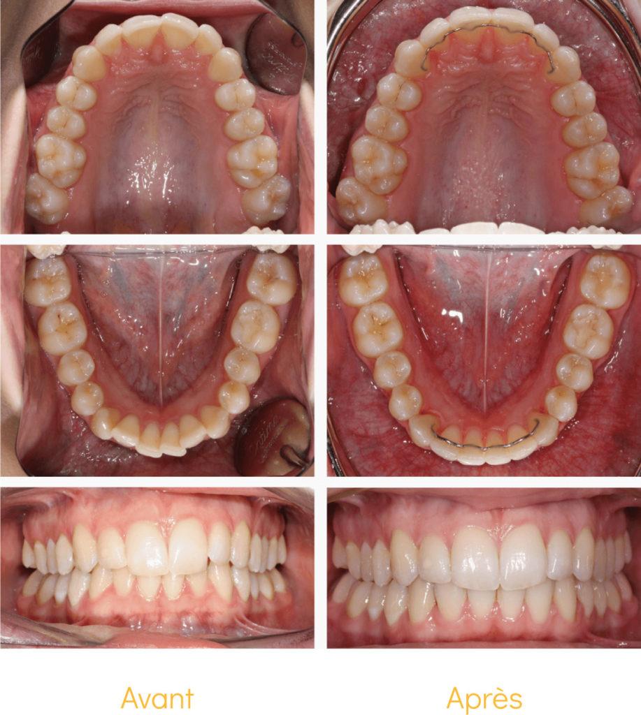 Le sourire de notre patiente, avant et après un traitement Invisalign