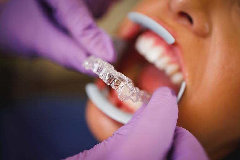 Comparatif entre les gouttières Invisalign et leur concurrents lowcost, par un orthodontiste du cabinet Dental Geneva
