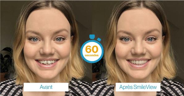 Orthodontie adulte, Invisalign avant / après, Dental Geneva