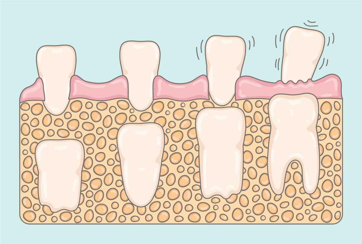 Eruption des dents de lait dans la bouche de l'enfant, Dental Geneva